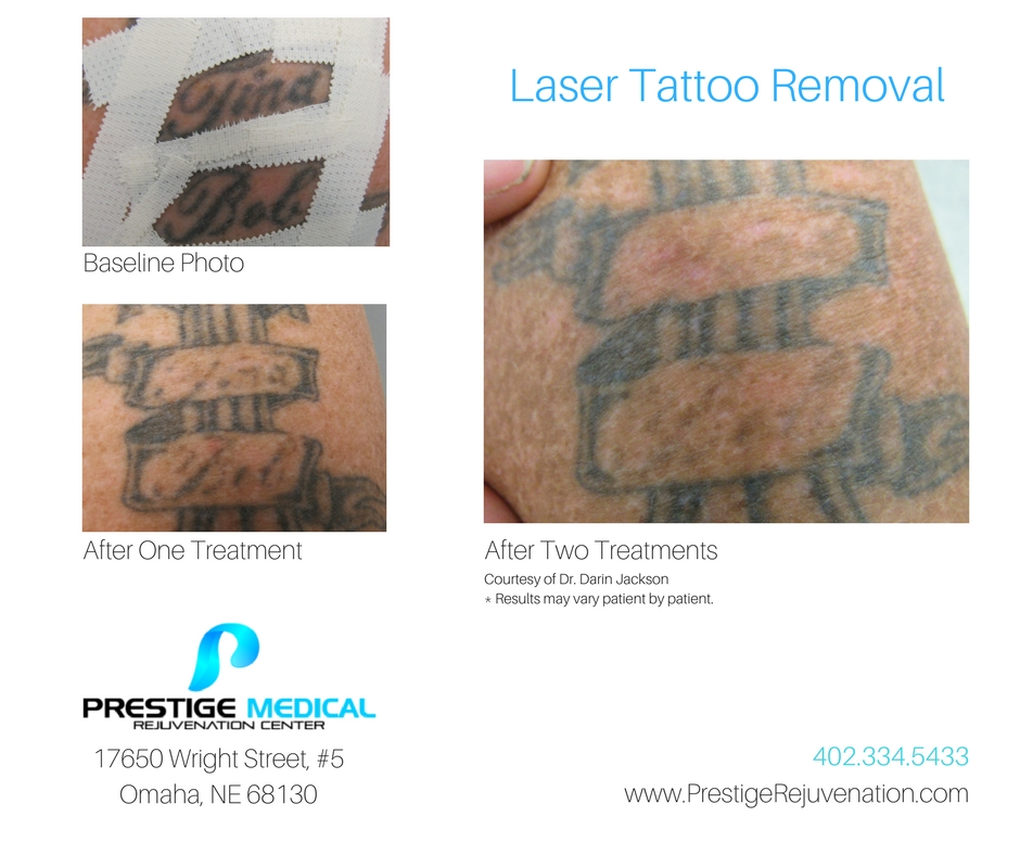Laser Tattoo Removal before and after Price List