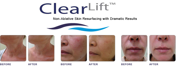 ClearLift at Prestige Medical Rejuveantion Center